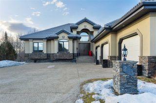 Photo 1: 231 WILSON Lane in Edmonton: Zone 22 House for sale : MLS®# E4234037