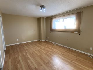 Photo 11: 565 DUNLUCE Road in Edmonton: Zone 27 Townhouse for sale : MLS®# E4248896