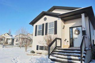 Photo 1: 17 CRAIGEN CO: Leduc House for sale : MLS®# E4054219