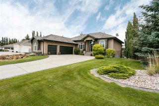 Photo 2: 83 52304 RGE RD 233: Rural Strathcona County House for sale : MLS®# E4225811