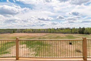 Photo 17: 44029 Twp Rd 632: Rural Bonnyville M.D. House for sale : MLS®# E4245106