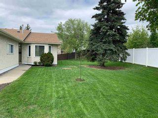 Photo 3: 9375 172 Street in Edmonton: Zone 20 House Half Duplex for sale : MLS®# E4246345