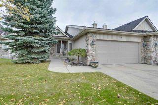 Photo 1: 45 929 PICARD Drive in Edmonton: Zone 58 House Half Duplex for sale : MLS®# E4243206