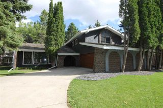 Photo 1: 12 QUESNELL Road in Edmonton: Zone 22 House for sale : MLS®# E4212400