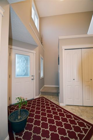 Photo 3: 120 CASTLE Drive in Edmonton: Zone 27 House Half Duplex for sale : MLS®# E4225009