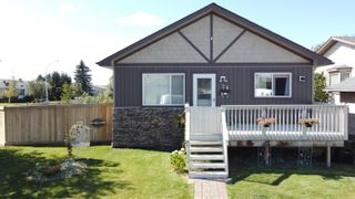 Photo 1: 76 DUNLUCE Road in Edmonton: Zone 27 House for sale : MLS®# E4261665