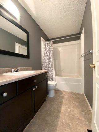 Photo 28: 11 VENTURA Street: Spruce Grove House Half Duplex for sale : MLS®# E4266429