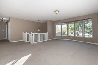 Photo 8: 15916 100 Street in Edmonton: Zone 27 House for sale : MLS®# E4264242