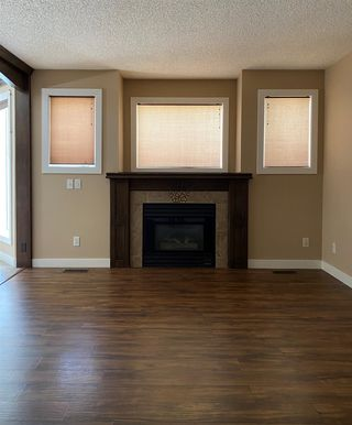 Photo 21: 8784 189 Street in Edmonton: Zone 20 Townhouse for sale : MLS®# E4255397