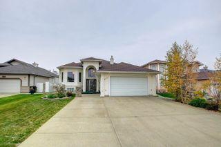 Photo 2: 8626 159A Avenue in Edmonton: Zone 28 House for sale : MLS®# E4265710