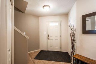 Photo 12: 124 CASTLE Drive in Edmonton: Zone 27 House Half Duplex for sale : MLS®# E4260271