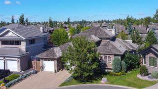 Photo 4: 5023 DONSDALE Drive in Edmonton: Zone 20 Condo for sale : MLS®# E4236487