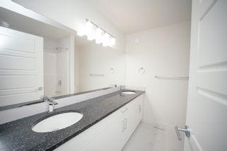 Photo 11: 10715 66 Avenue in Edmonton: Zone 15 House Half Duplex for sale : MLS®# E4255485