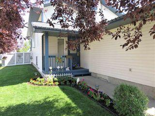 Photo 2: 929 116A Street in Edmonton: Zone 16 House for sale : MLS®# E4256079