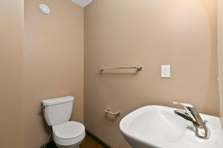 Photo 9: 1024 175 Street in Edmonton: Zone 56 Attached Home for sale : MLS®# E4260648