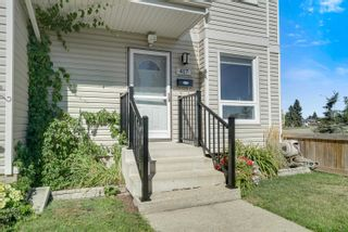 Photo 4: 417 DUNLUCE Road in Edmonton: Zone 27 Townhouse for sale : MLS®# E4261945